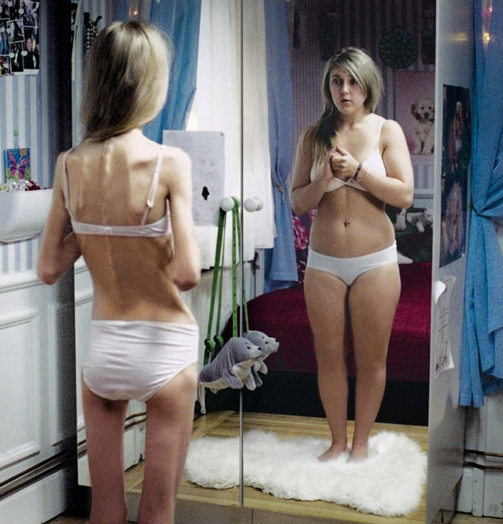 link between eating disorders and sexual abuse